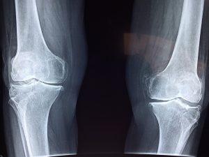 Röntgenkuva polvista